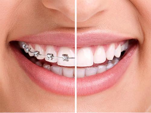 Imagen relacionada a la promoción Oral Plus